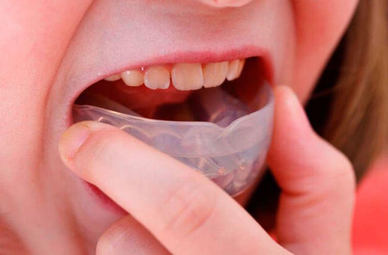 Трейнер для зубов и его разновидности (т4к, т4а, т4в): фото до и после | spacream.ru