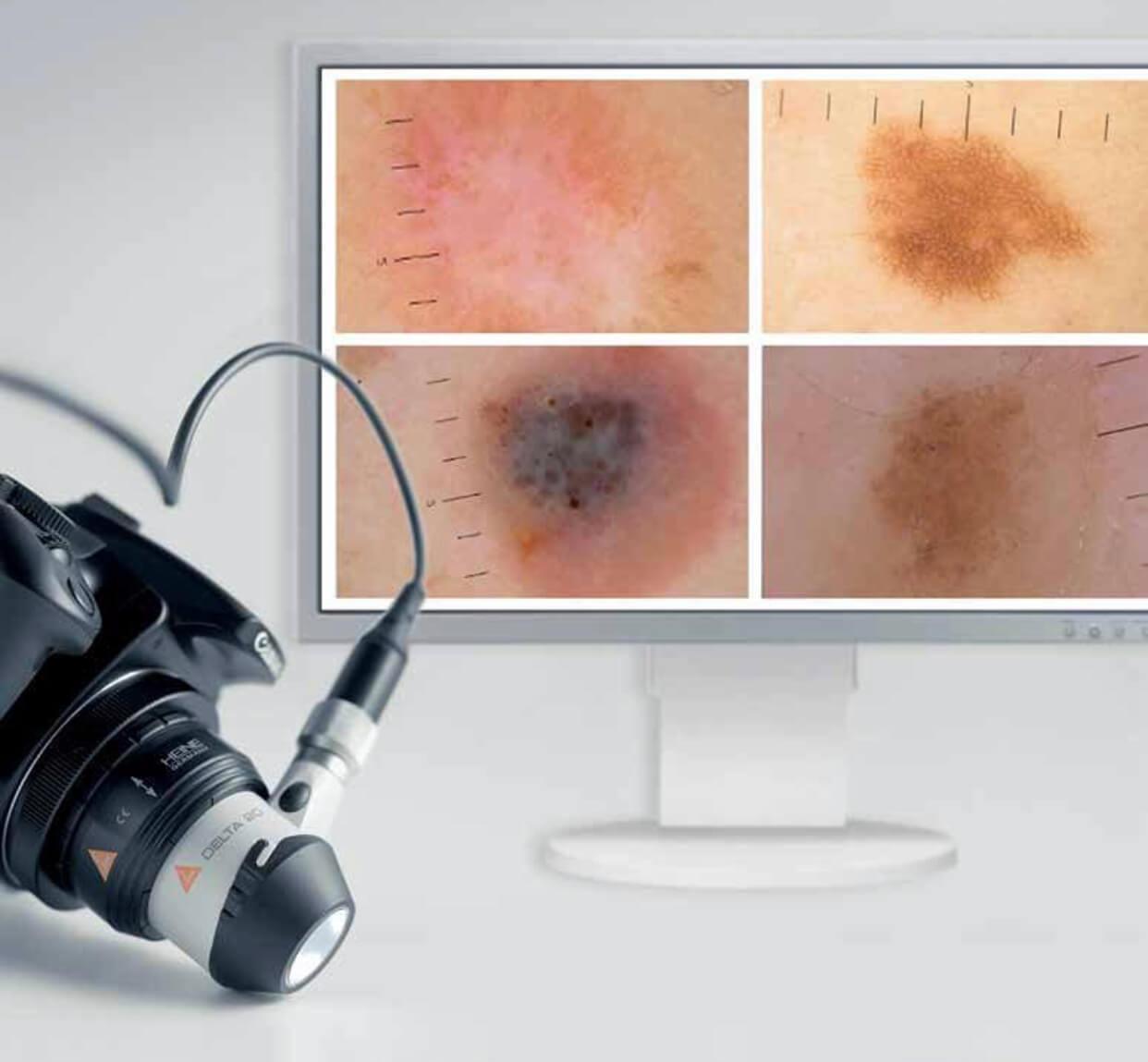 Дерматоскопия - что это?
