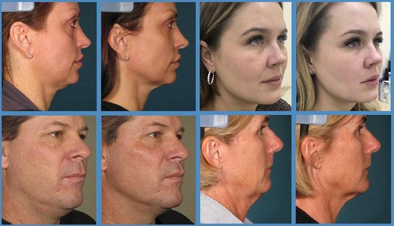 Микронидлинг лица: что это такое, противопоказания, как проводится процедура, эффект, уход после, осложнения
