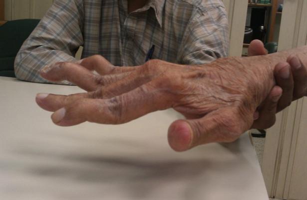 Ревматоидный артрит: внимание на симптомы, анализы, лечение медикаментами и народное