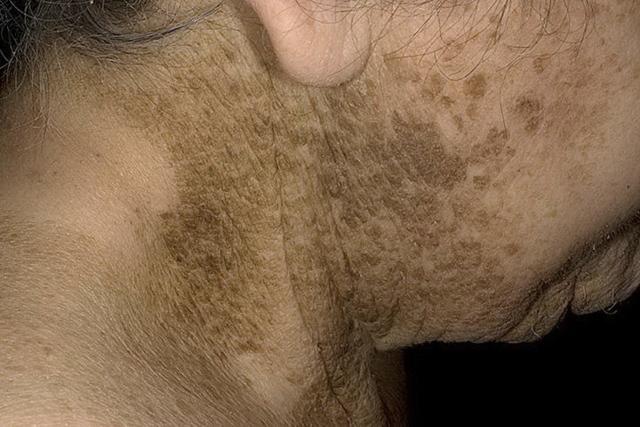 Кератома: фото – что это такое и как лечить кератому кожи?