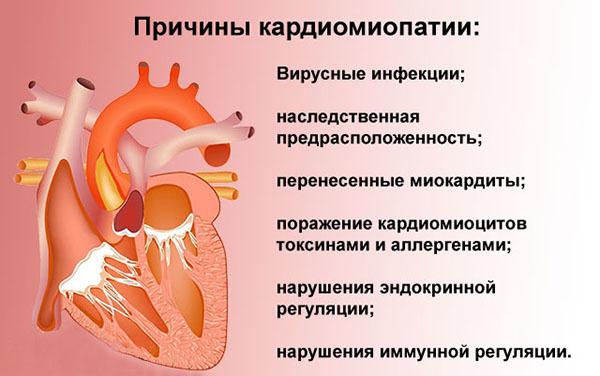 Алкогольная кардиомиопатия: причины, симптомы, лечение, осложнения