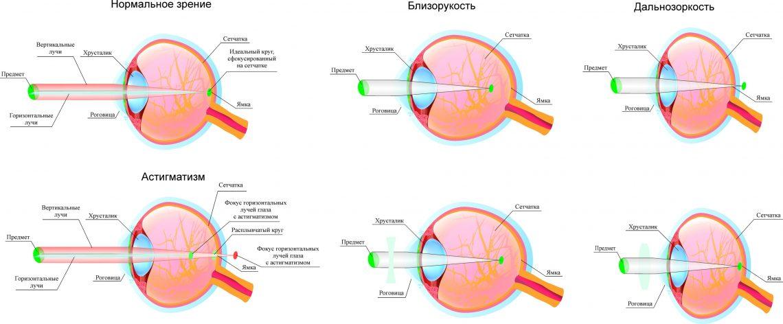Близорукость - это миопия глаз, причины и признаки болезни