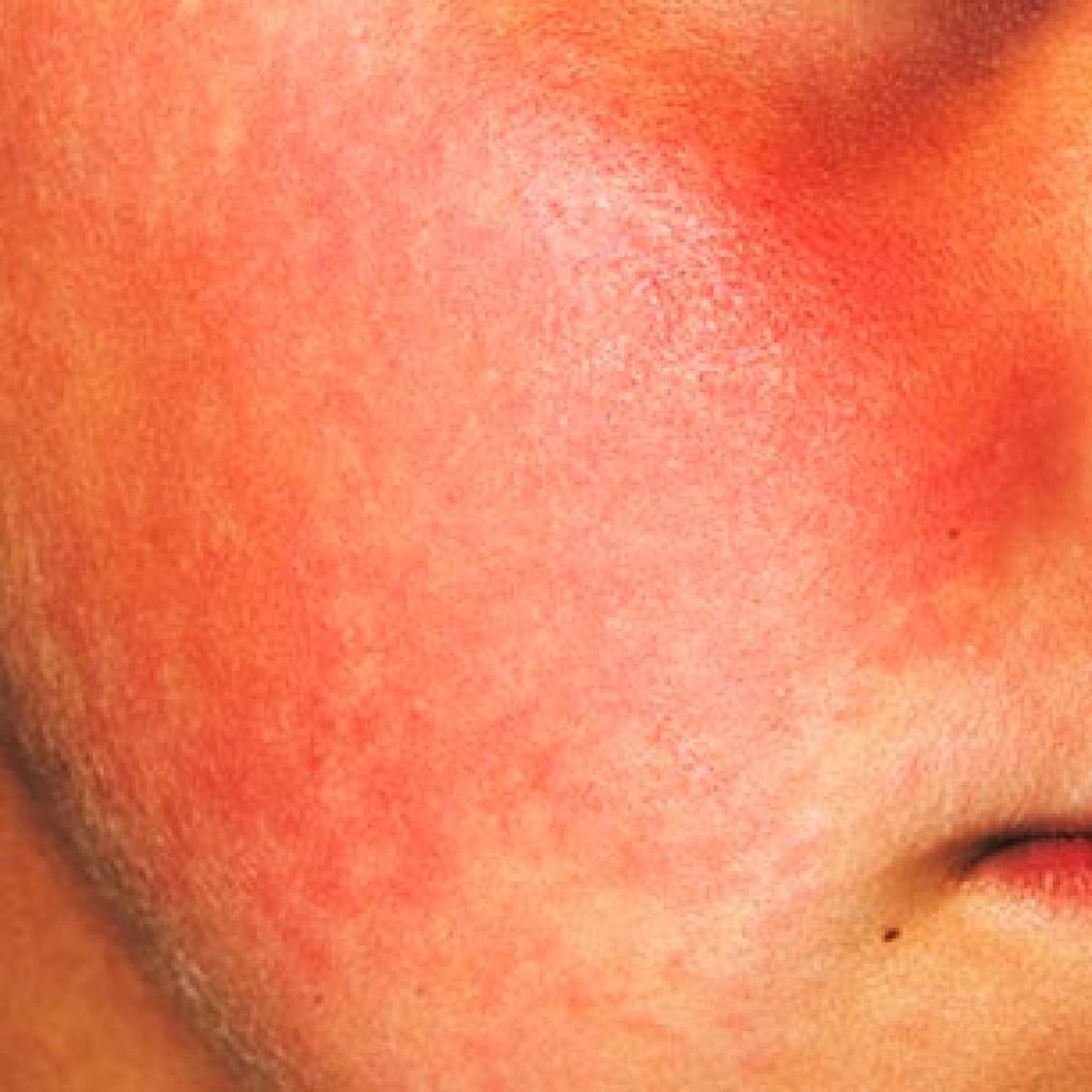 Гиперемия кожи лица: что это такое, фото, причины и лечение