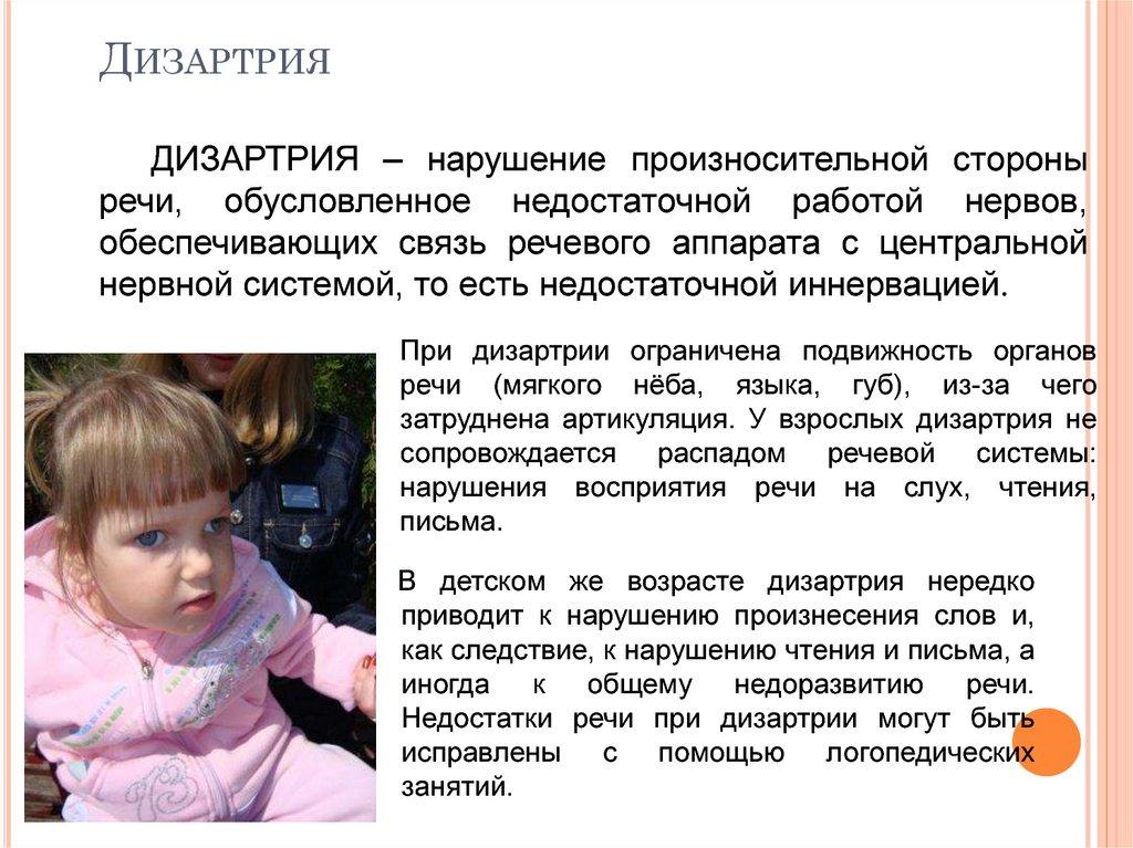 Дизартрия у детей: формы, характеристика ребенка, коррекция