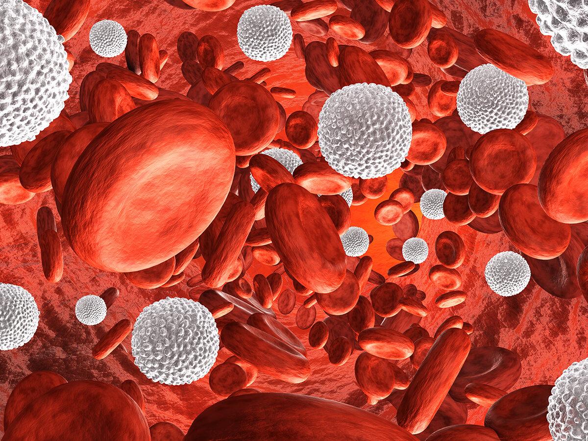 Лейкоцитоз - причины, симптомы, лечение, нейтрофильный лейкоцитоз