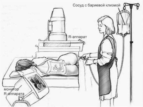 Ирригоскопия кишечника: что это такое, как проводится процедура, подготовка к обследованию