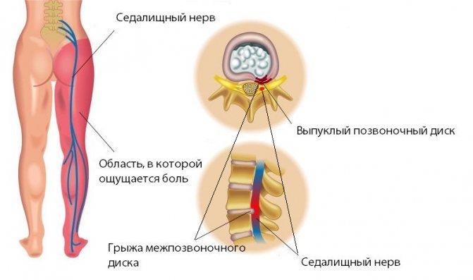 Люмбалгия поясничного отдела позвоночника что это такое лечение
