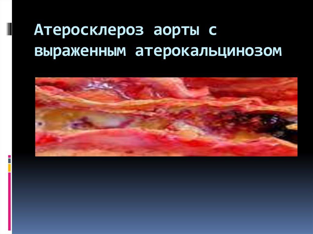 Атеросклероз аорты сердца - что это такое? симптомы, лечение и профилактика заболевания - всё о склерозе