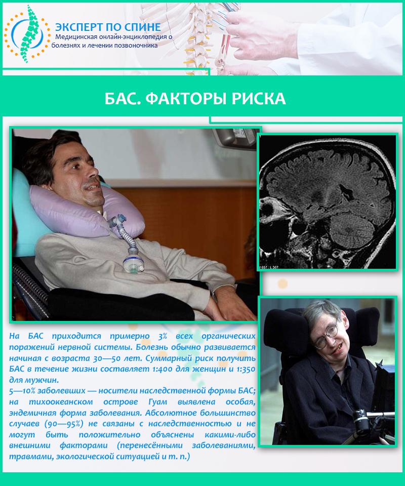 Боковой амиотрофический склероз: симтомы и причины   милосердие.ru