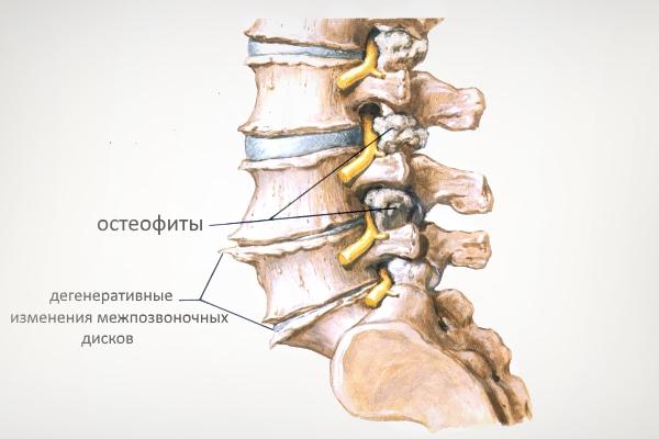 Спондилоартроз шейного отдела позвоночника что нельзя
