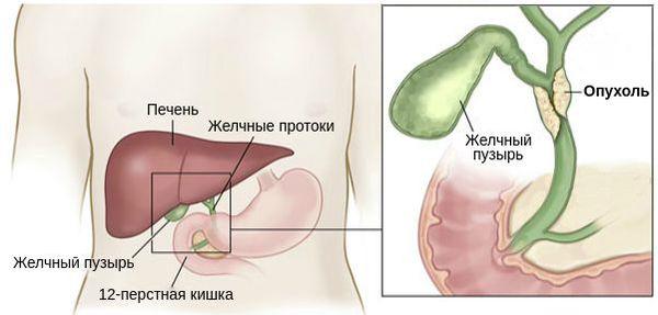 Холангиокарцинома печени: особенности развития