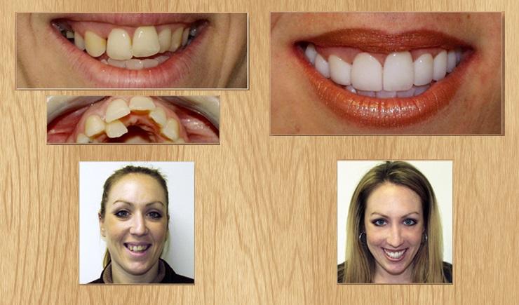 Для чего нужны виниры на передние зубы: что это такое, виды, какие виниры выбрать