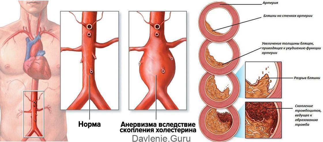 Атеросклероз аорты: что это, симптомы, как лечить?