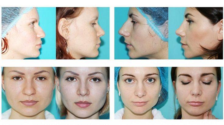 Ринопластика широкого носа - цена и фото | ринопластика носа