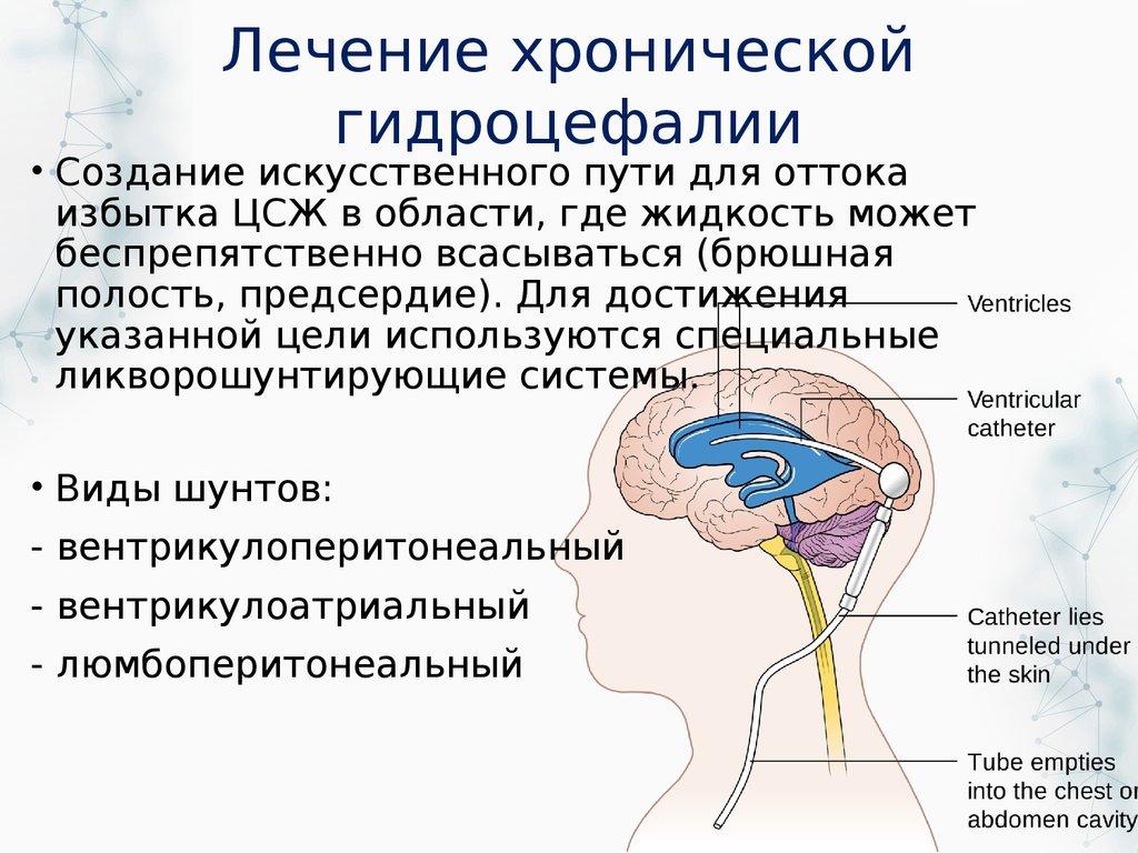 Гидроцефалия (водянка головного мозга): что это такое, симптомы заболевания у взрослых, методы лечения - sosudy.info