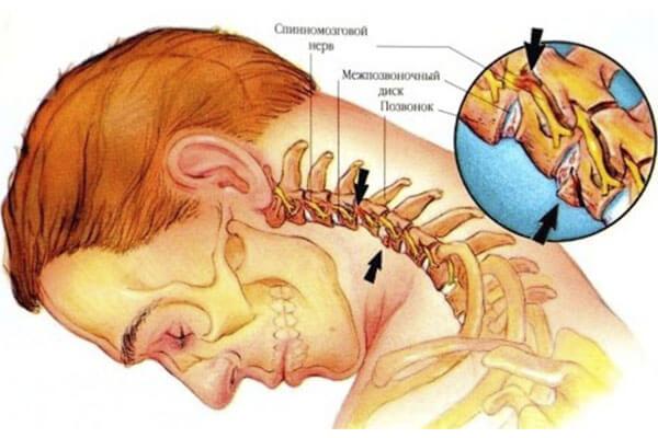 Цервикокраниалгия — причины, симптомы и лечение   все о суставах и связках