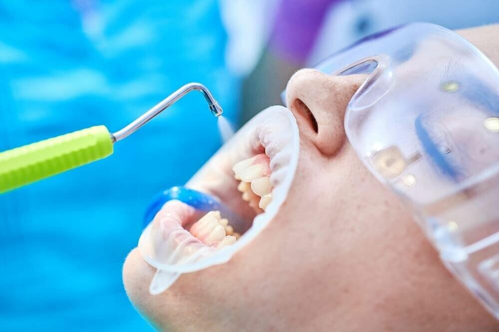 Санация полости рта: что это такое и как процедура проводится сегодня