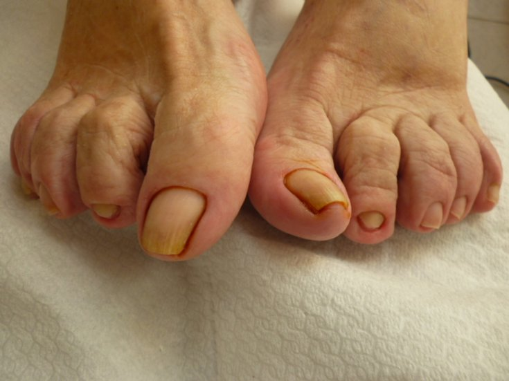 ᐉ вросший ноготь воспаление как лечить. последствия вросшего ногтя. видео о том, как избавиться от вросшего ногтя ➡ klass511.ru