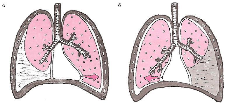Гидроторакс легких - что это, чем опасен, симптомы, лечение