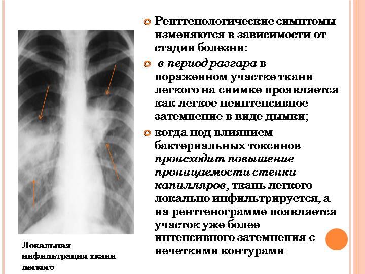 Полисегментарная пневмония двусторонняя - что это бронхопневмония у взрослых, история болезни внебольничной, причины нижнедолевой