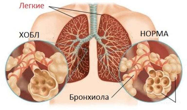 Что такое туберкулема легких и чем она опасна?