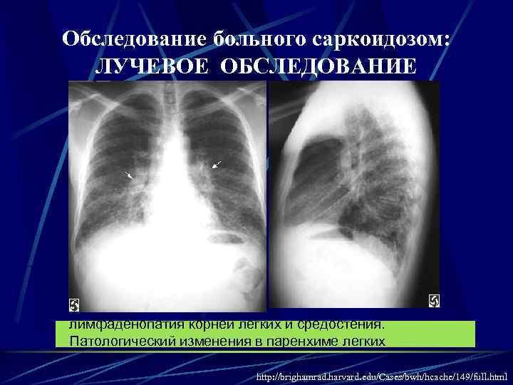 Внутригрудная лимфаденопатия: что это такое, лечение лимфоузлов в легких