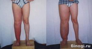 Лимфостаз нижних конечностей: чем грозят отеки ног? | компетентно о здоровье на ilive