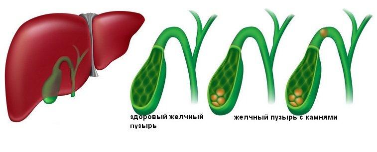 Что такое холецистит, как его лечить и чем грозит воспаление