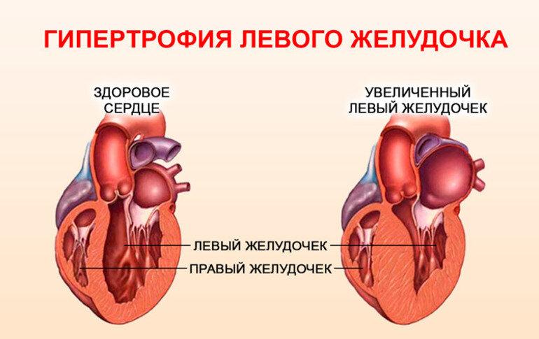 Опсс в медицине что это такое - медпрофилактика
