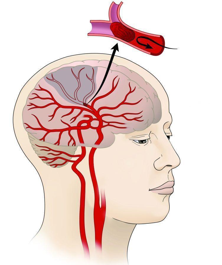 Брахиоцефальные артерии (бца): функции, строение, патологии (атеросклероз бца и пр.)