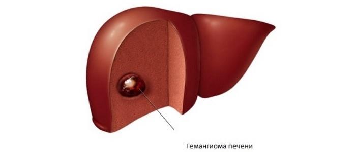 Гемангиома печени: симптомы, признаки, причины, диагностика. лечение гемангиомы печени у детей и взрослых