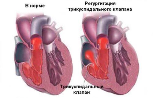 Легочная регургитация 1 степени что это такое — сердце