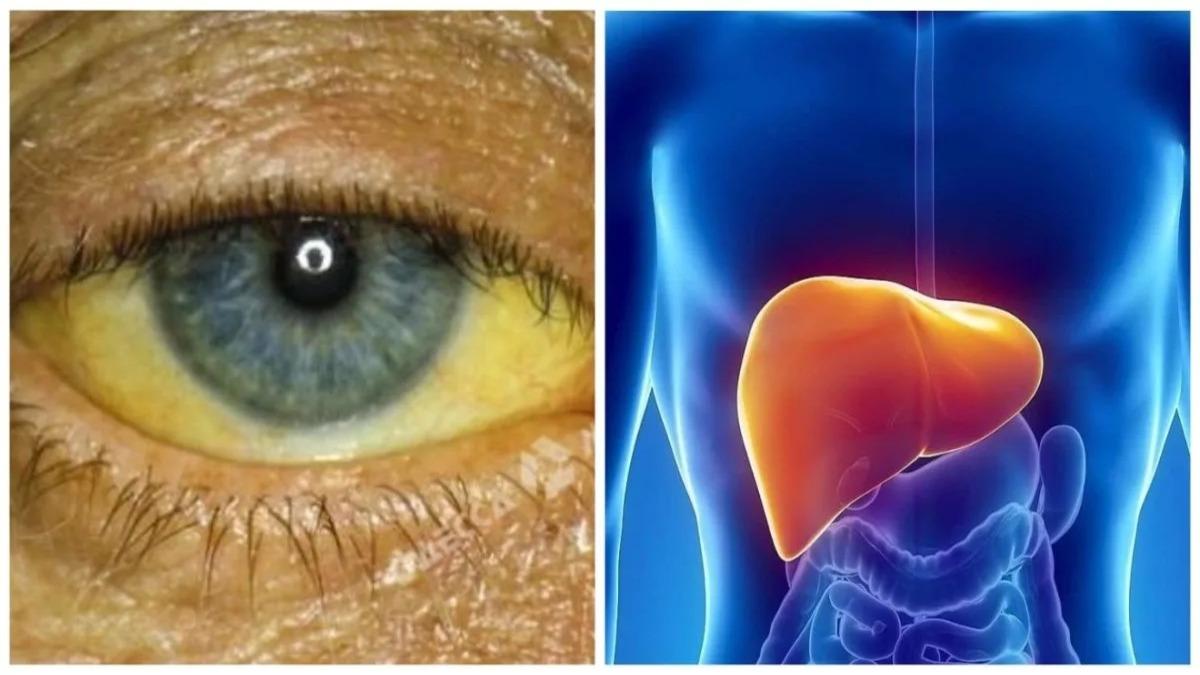 Причины, симптомы и лечение желтухи