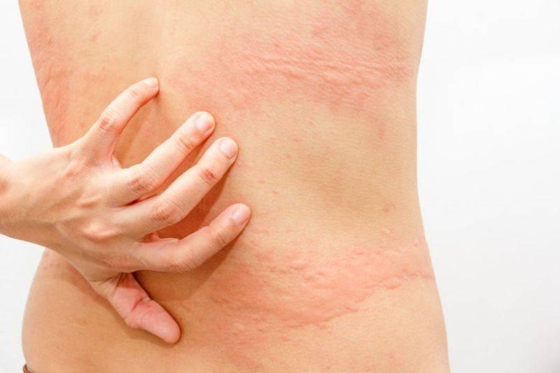 Зуд кожи тела – причины без высыпаний или с сыпью у взрослого
