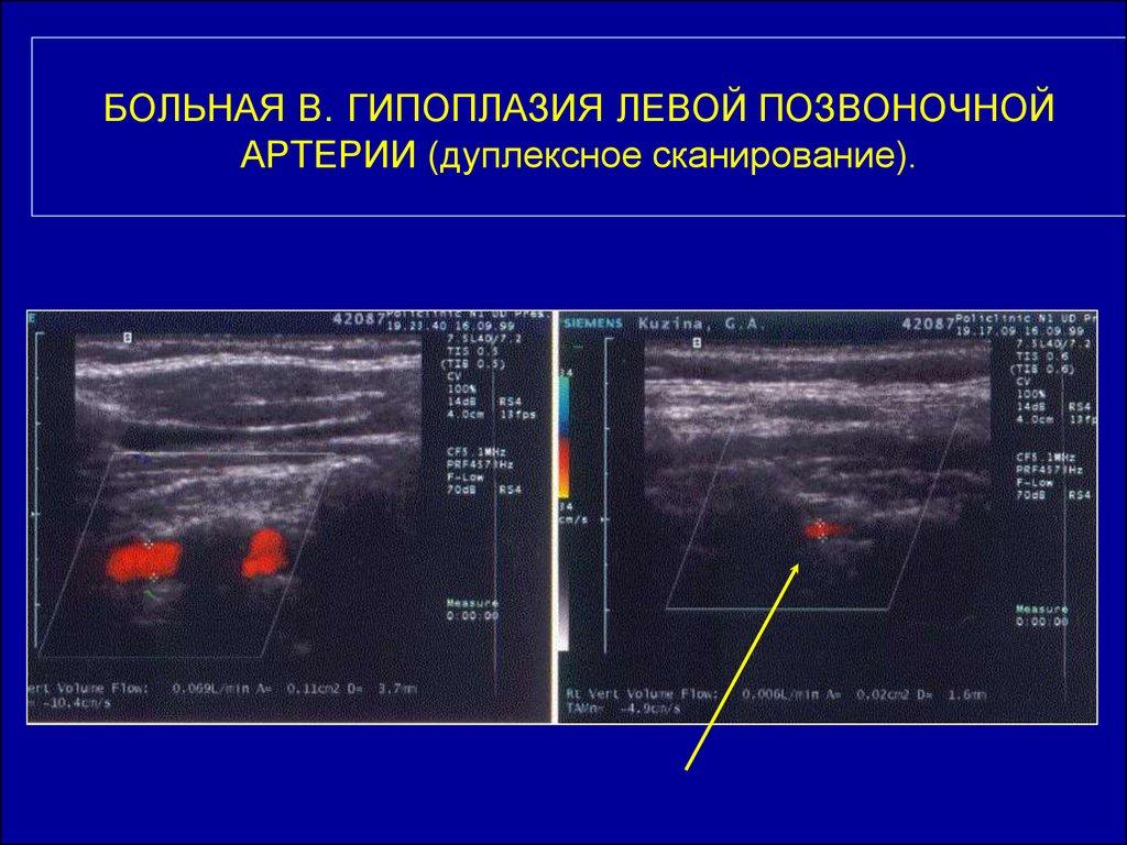 Гипоплазия позвоночной артерии: причины, симптомы, диагностика, лечение и последствия
