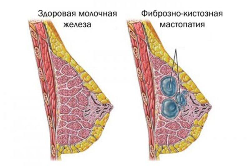 Кистозная мастопатия: причины, симптомы, лечение и профилактика