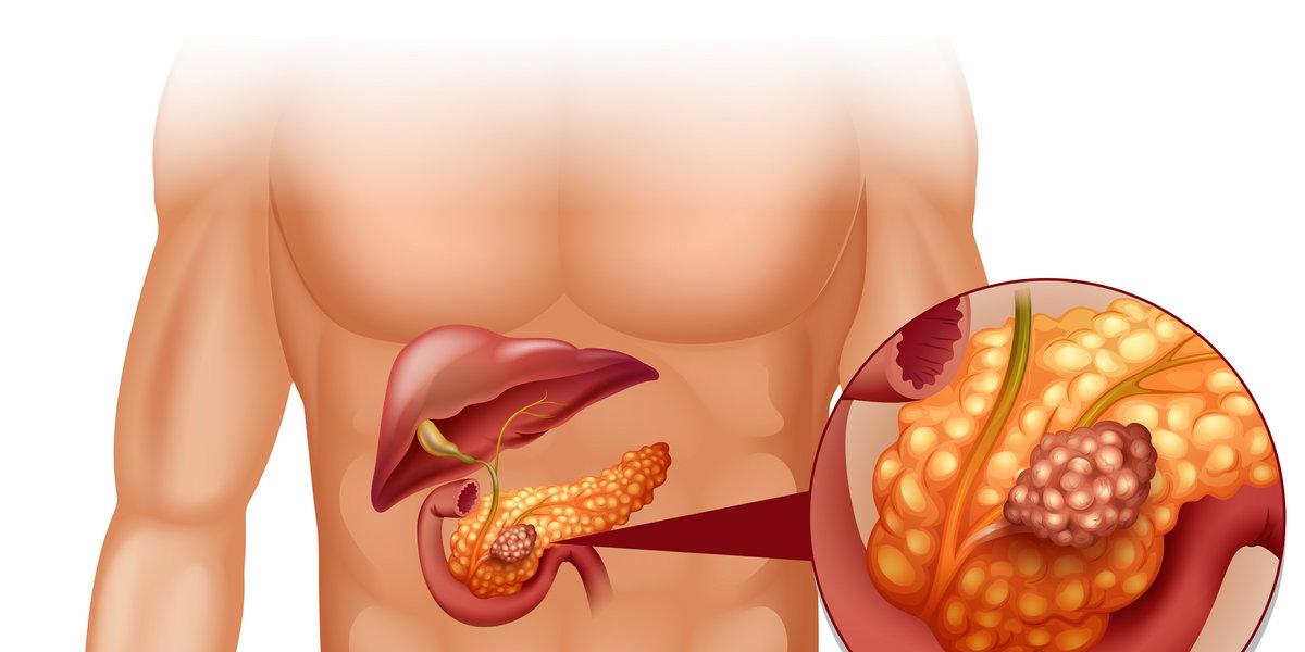Липоматоз поджелудочной железы - что это, прогноз, фото и как лечить