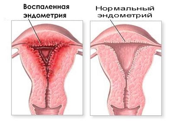 Что такое эндометрий. толщина эндометрия и нарушения его нарастания