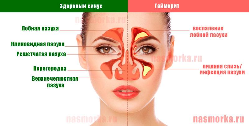 Хронический фронтит: симптомы, способы эффективного лечения