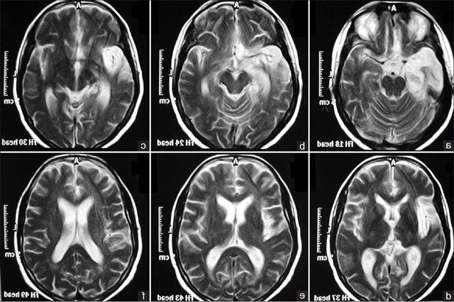 Резидуальная энцефалопатия у детей