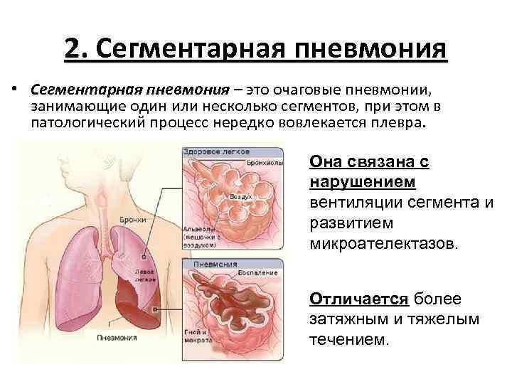 Как развивается полисегментарная пневмония
