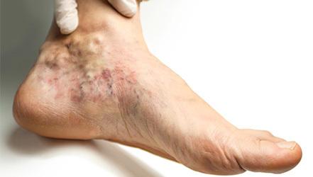 Тромбоз, виды, признаки — симптомы- лечение