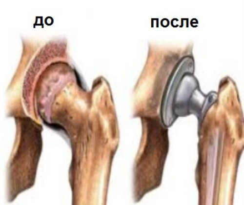 Что такое остеоартроз, его симптомы и лечение