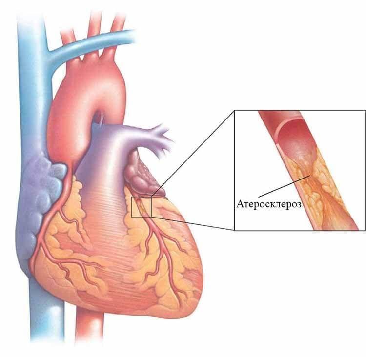 Атеросклероз сердца что это такое - сердце в норме