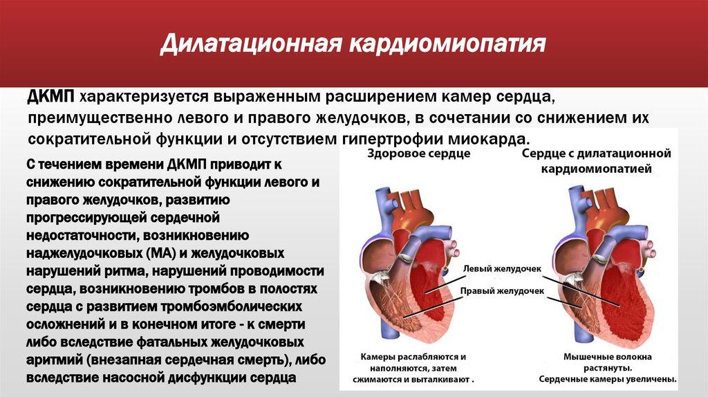 Что такое кардиомегалия и каковы ее последствия