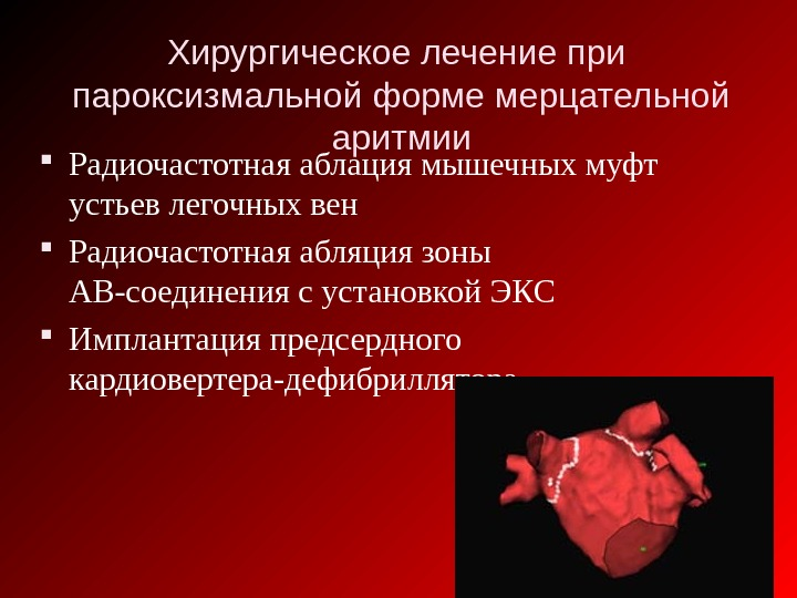 Радиочастотная абляция сердца