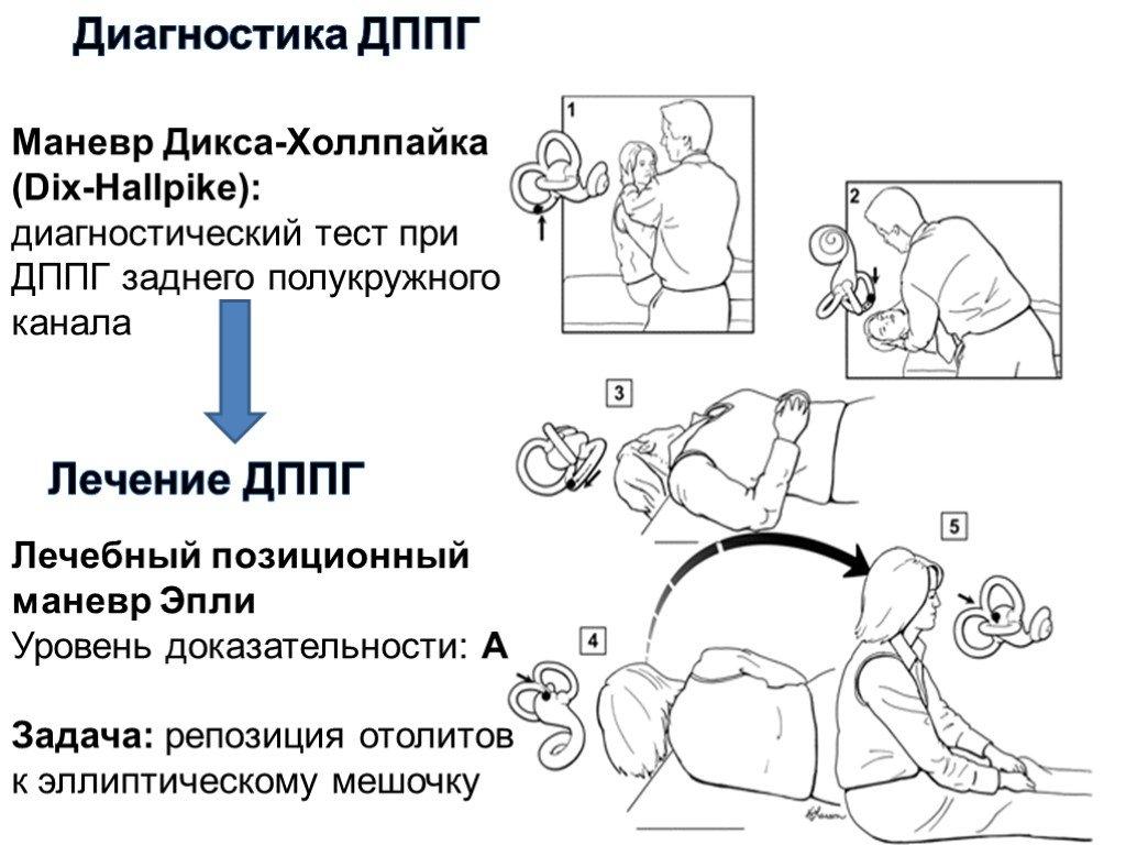 Пароксизмальное позиционное головокружение - причины, симптомы, диагностика и лечение | ким