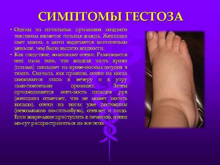 Что такое гестоз беременных. симтомы, признаки, последствия - mama.ru