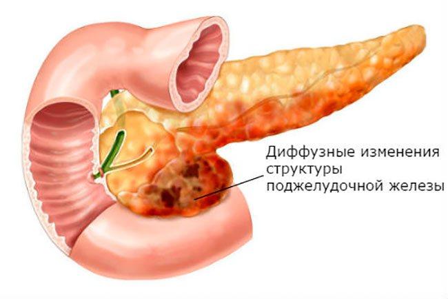 Диффузные изменения тканей поджелудочной железы — что это значит?